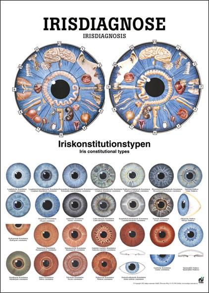 Lehrtafel - Irisdiagnose - 24 x 34