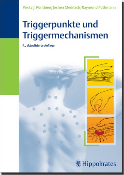 Triggerpunkte und Triggermechanismen